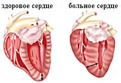 патологии сердца кошки
